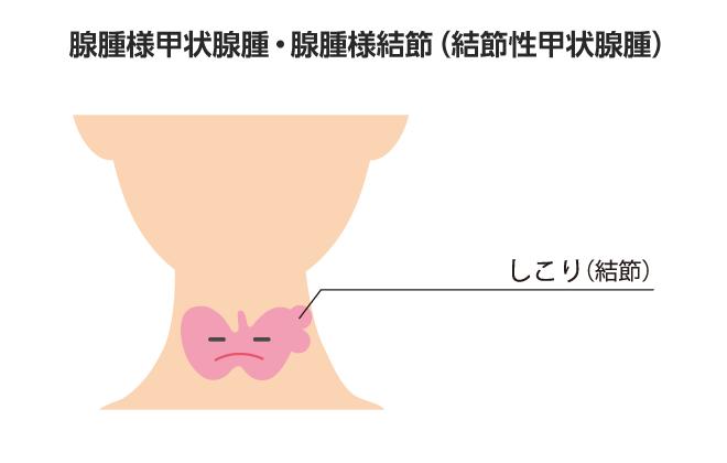 腫瘍 症状 甲状腺