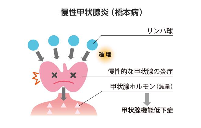 慢性甲状腺炎(橋本病)
