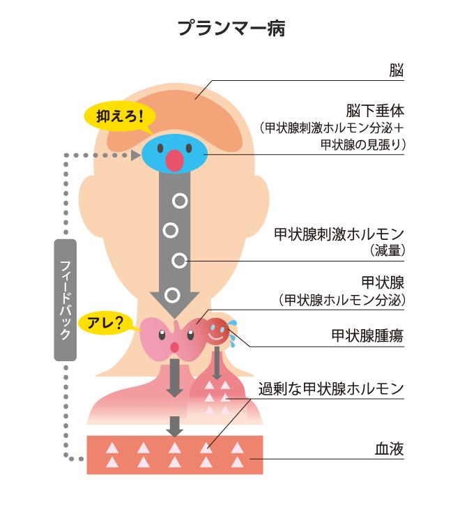 プランマー病