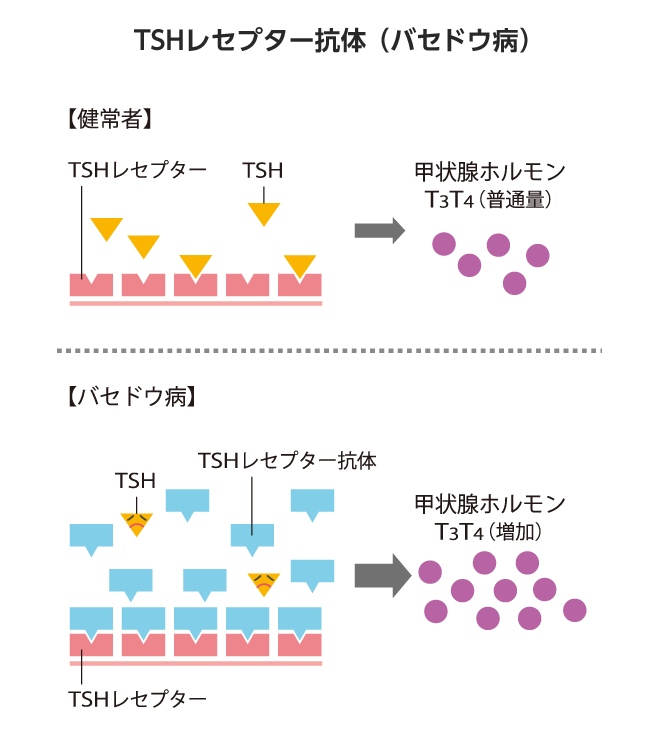TSHレセプター抗体